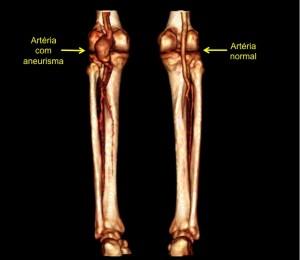 aneurisma-de-aorta-01