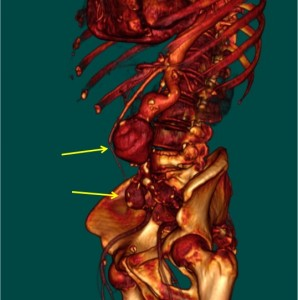 aneurisma-de-aorta-02