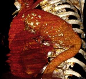 aneurisma-de-aorta-04