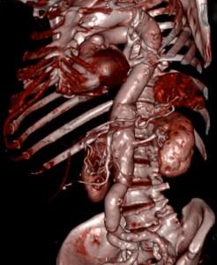 aneurisma-de-aorta-06